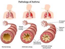 Asthma Doctor NYC 1