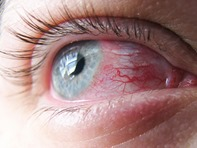 Allergic Eye Condition
