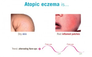 what-is-atopic-eczema-definition