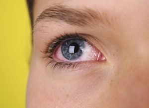 Five Signs Of Eye Allergies